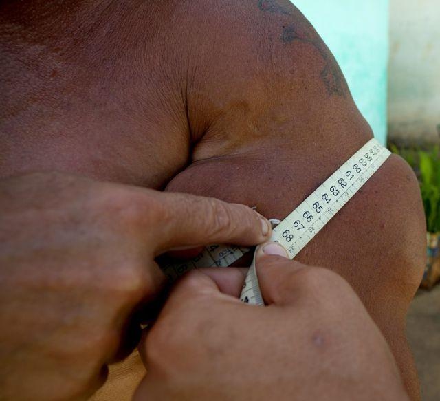 Arlindo Anomalia, o brasileiro que ganhou o mundo com seus músculos falsos