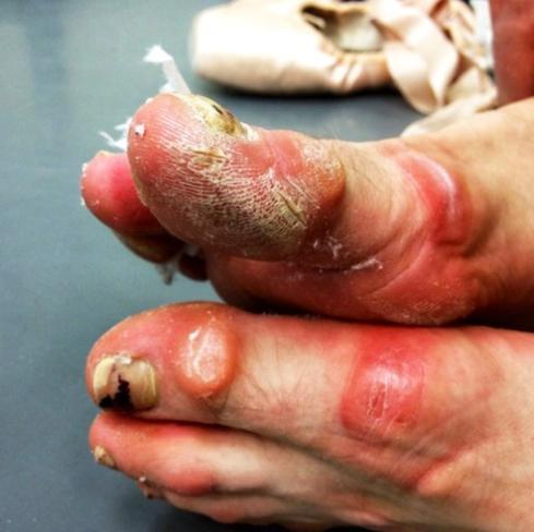Os pés de uma bailarina profissional