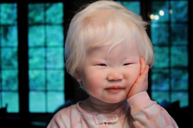 Garoto albino chinês