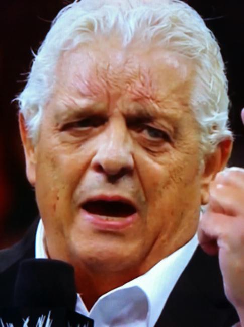 Depois de longa carreira no wrestling profissional, lutadores exibem suas vastas coleções de cicatrizes