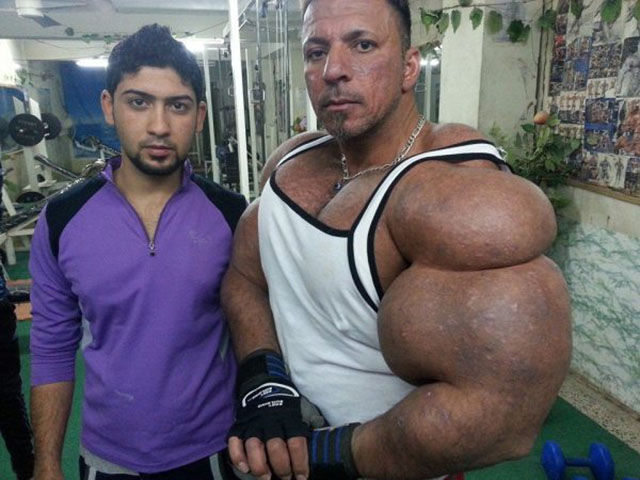 this_guy_has_the_most_gigantic_arm_muscles_ever_640_02