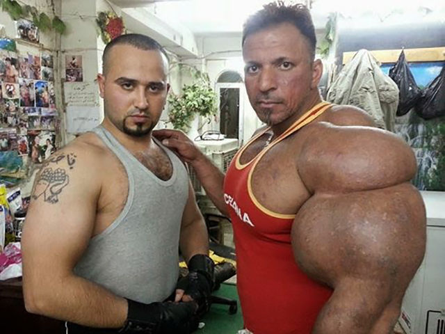this_guy_has_the_most_gigantic_arm_muscles_ever_640_08