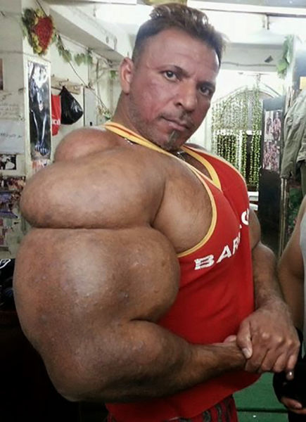 this_guy_has_the_most_gigantic_arm_muscles_ever_640_09