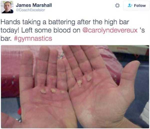 gymnasts-hands-17