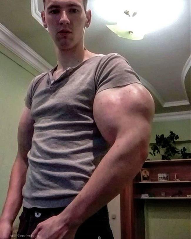 synthol-fail-and-failure-pictures2