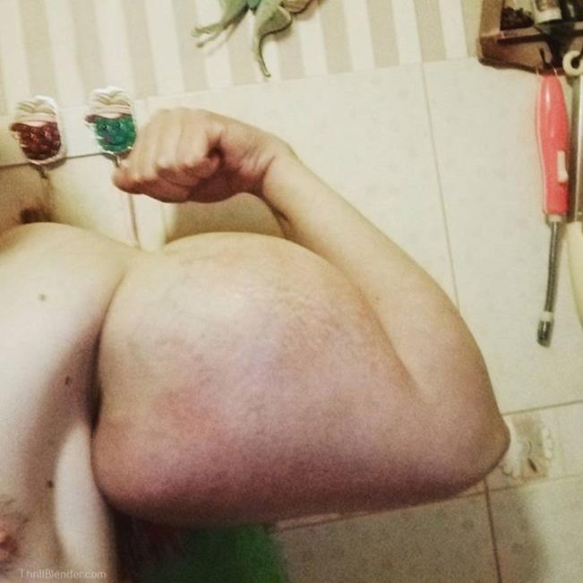 synthol-fail-and-failure-pictures4