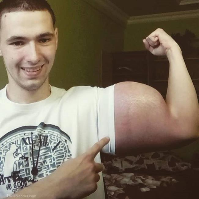 synthol-fail-and-failure-pictures6