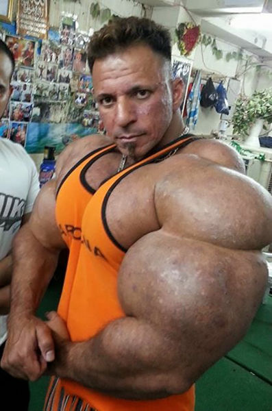 this_guy_has_the_most_gigantic_arm_muscles_ever_640_07