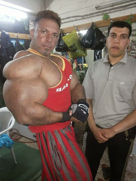 this_guy_has_the_most_gigantic_arm_muscles_ever_640_11