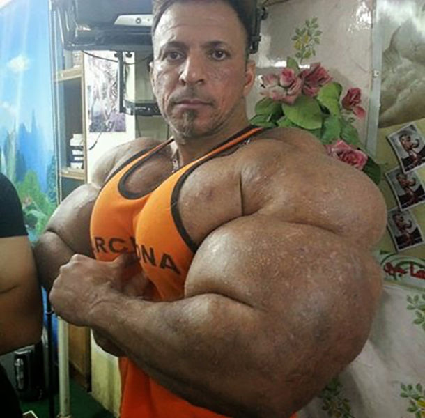 this_guy_has_the_most_gigantic_arm_muscles_ever_640_12