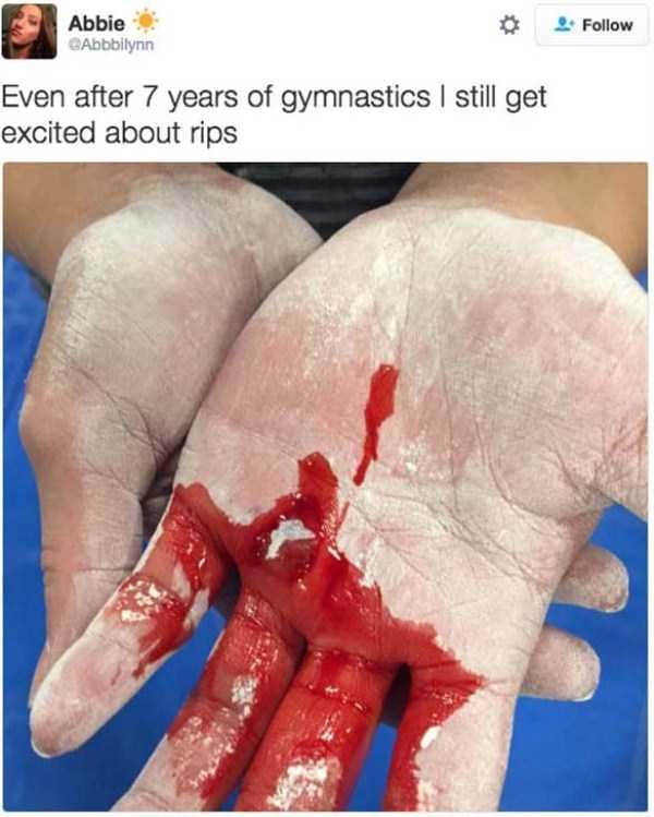 gymnasts-hands-18