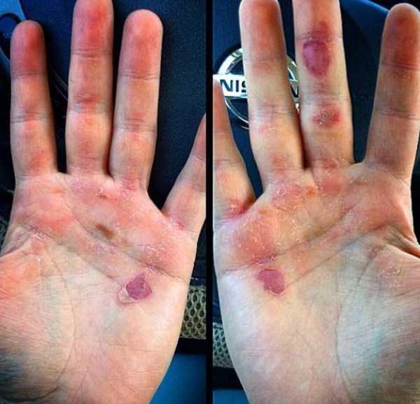 gymnasts-hands-19