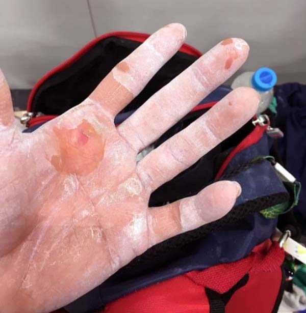 gymnasts-hands-5