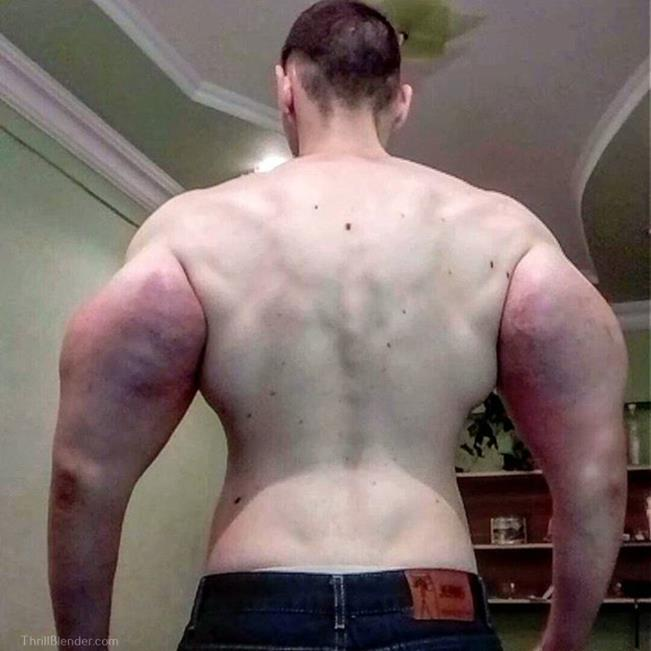 synthol-fail-and-failure-pictures5