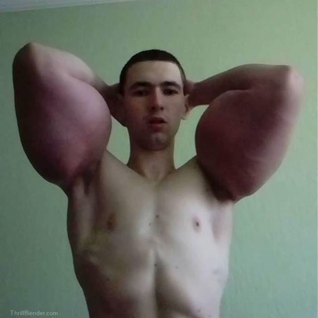 synthol-fail-and-failure-pictures9